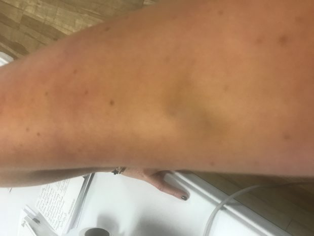 Kristin Davison bruised arm (Photo obtained by TheDCNF)